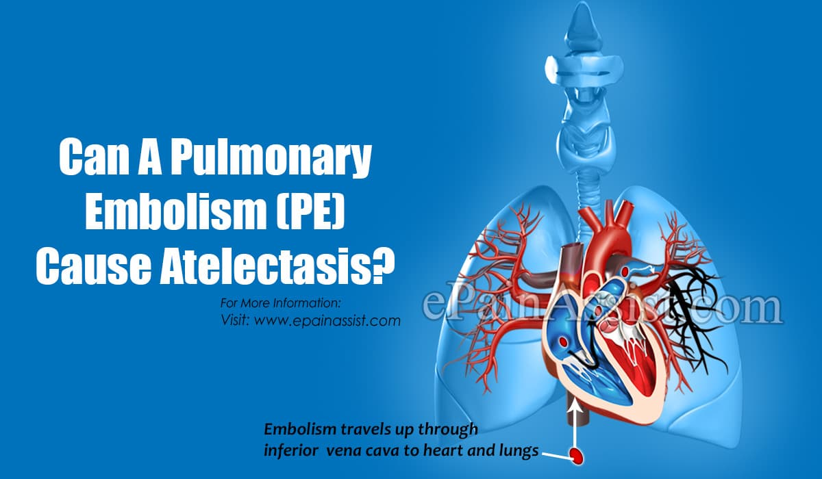 Can A Pulmonary Embolism (PE) Cause Atelectasis?