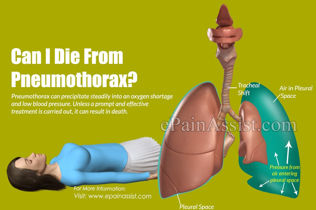 Can I Die From Pneumothorax?
