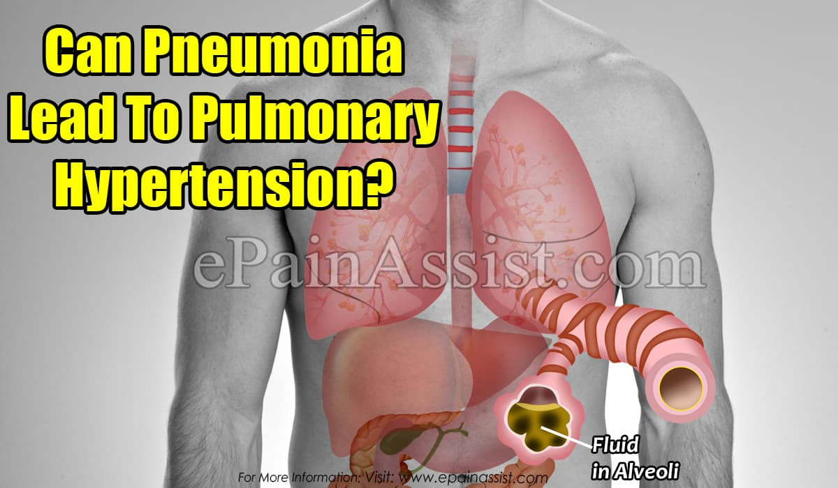 Can Pneumonia Lead To Pulmonary Hypertension?