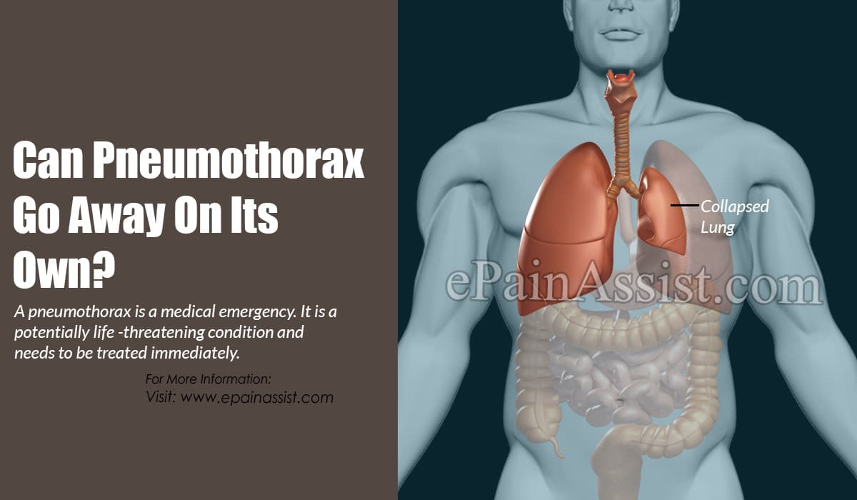 Can Pneumothorax Go Away On Its Own?