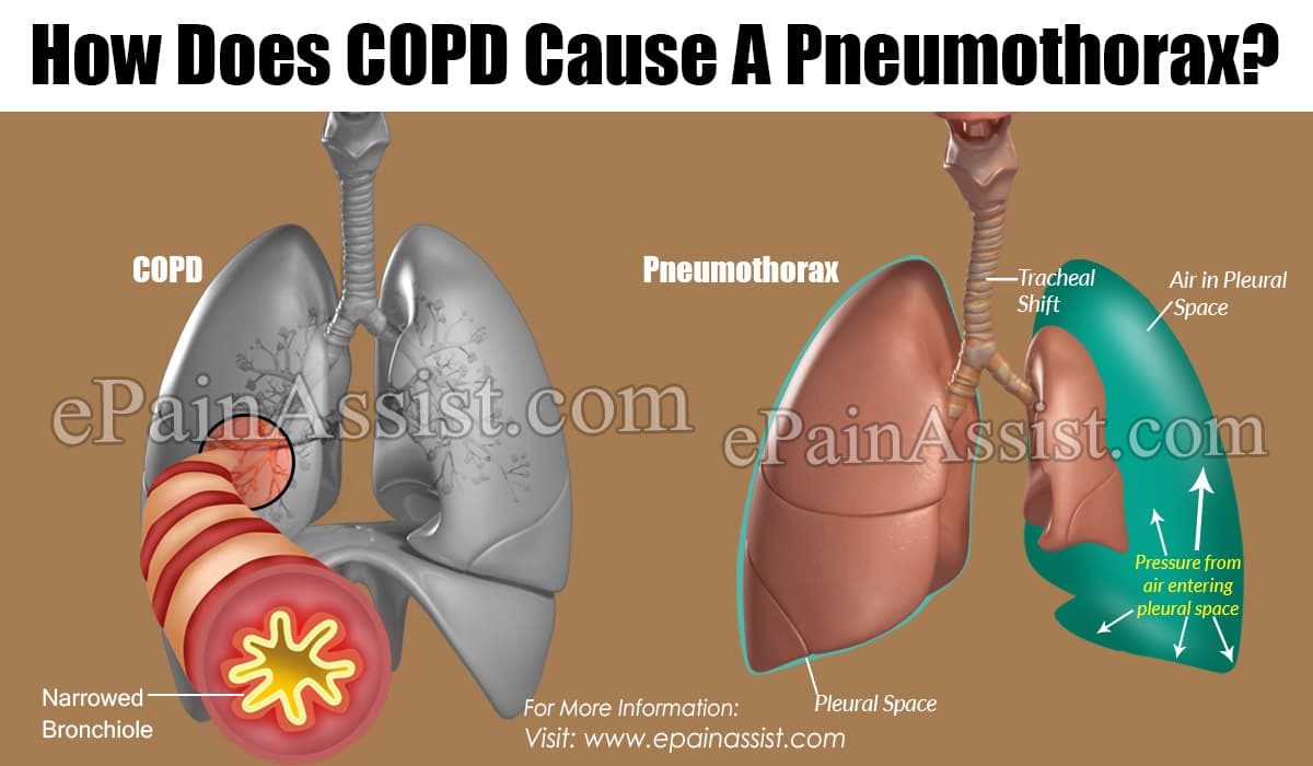 How Does COPD Cause A Pneumothorax?