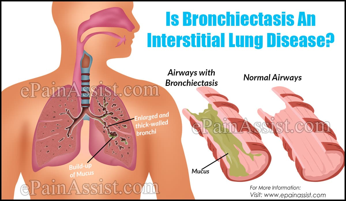 Is Bronchiectasis An Interstitial Lung Disease?