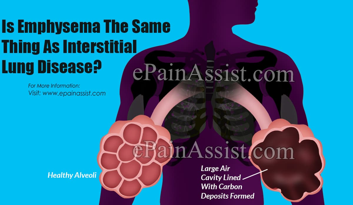 Is Emphysema The Same Thing As Interstitial Lung Disease?