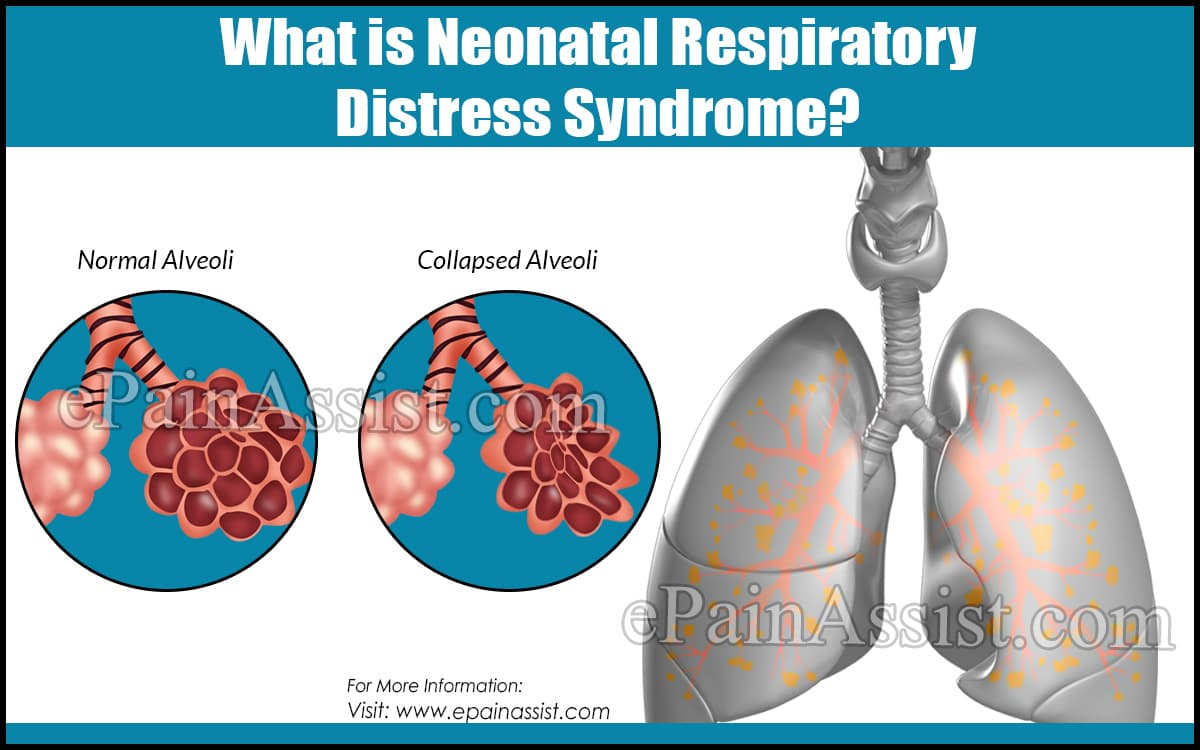 What is Neonatal Respiratory Distress Syndrome?