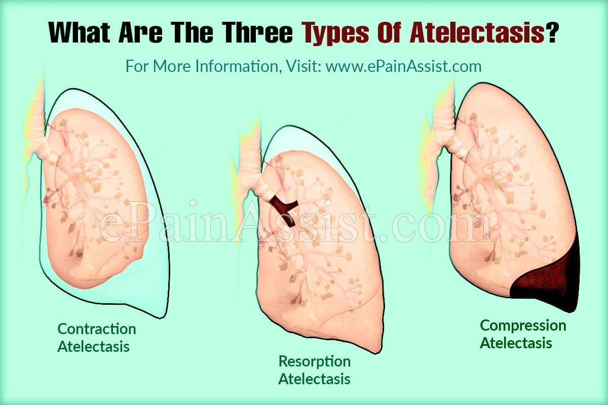 What Are The Three Types Of Atelectasis?