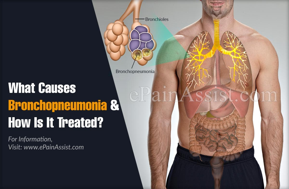 What Causes Bronchopneumonia & How Is It Treated?