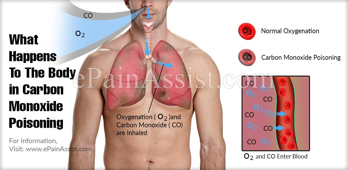What Happens To The Body in Carbon Monoxide Poisoning?