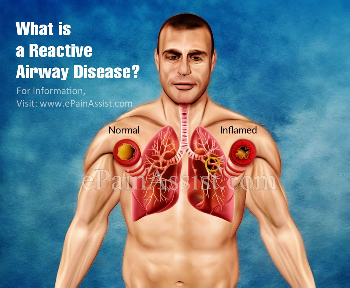 What is a Reactive Airway Disease?