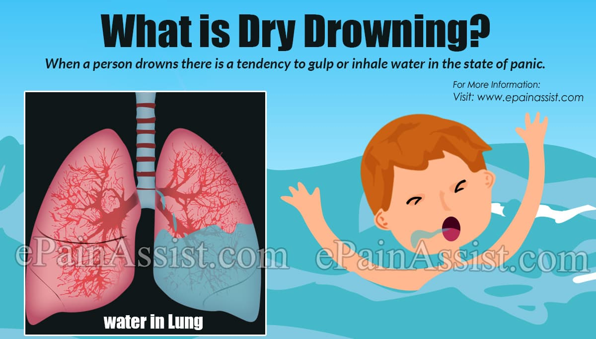 What is Dry Drowning?