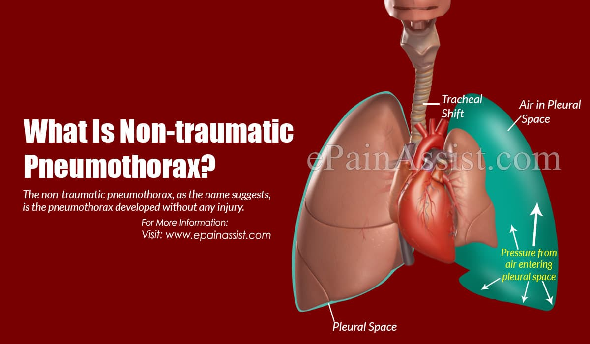 What Is Non-traumatic Pneumothorax?