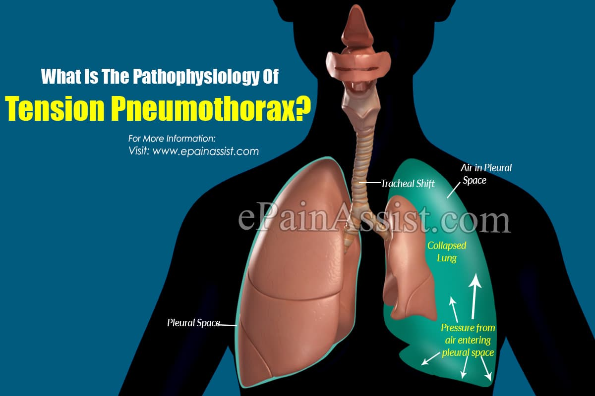 What Is The Pathophysiology Of Tension Pneumothorax?