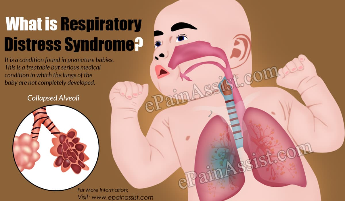 What is Respiratory Distress Syndrome?
