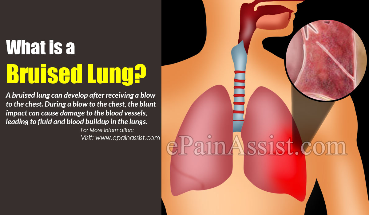 What is a Bruised Lung?