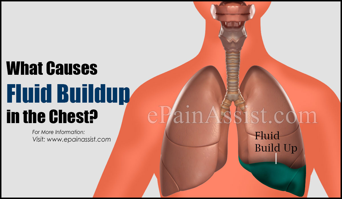 What Causes Fluid Buildup in the Chest?