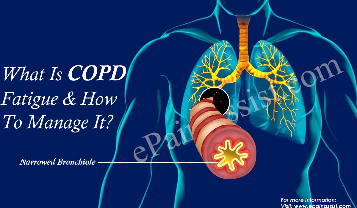 What is COPD Fatigue?