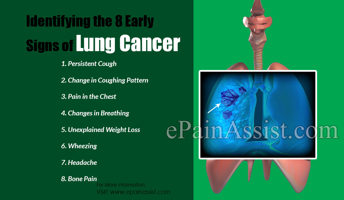 Identifying the 8 Early Signs of Lung Cancer