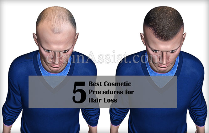 5 Best Cosmetic Procedures for Hair Loss