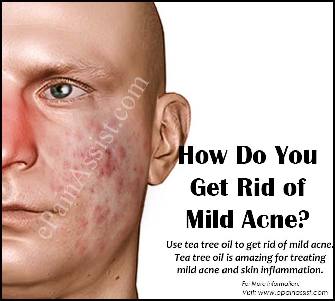 How Do You Get Rid of Mild Acne?