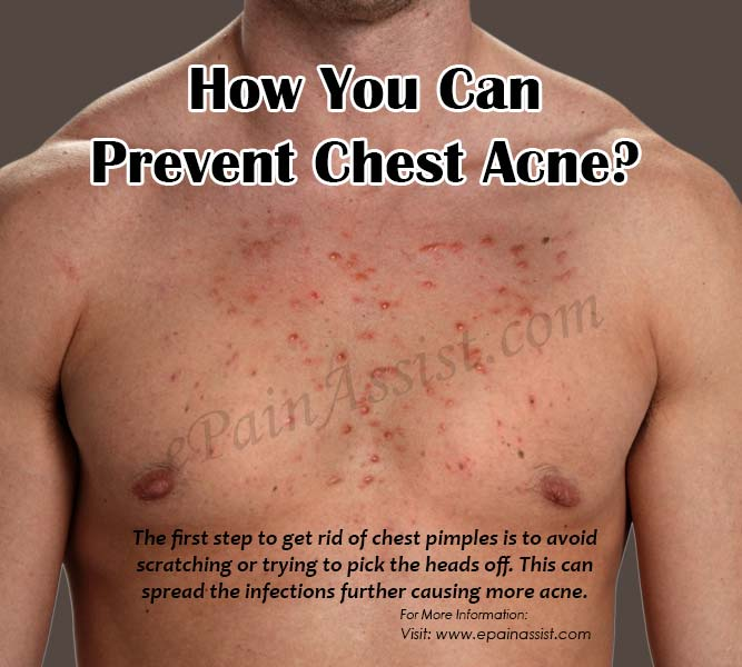 How You Can Prevent Chest Acne?