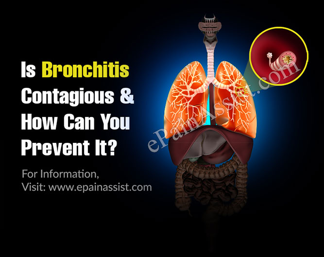 Is Bronchitis Contagious & How Can You Prevent It?