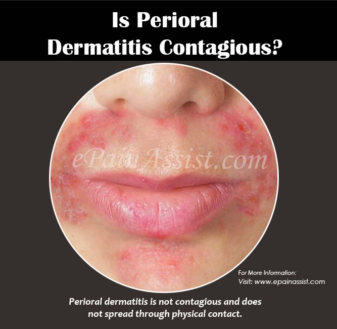 Contact Dermatitis: Is Perioral Dermatitis Contagious? Know The Treatment