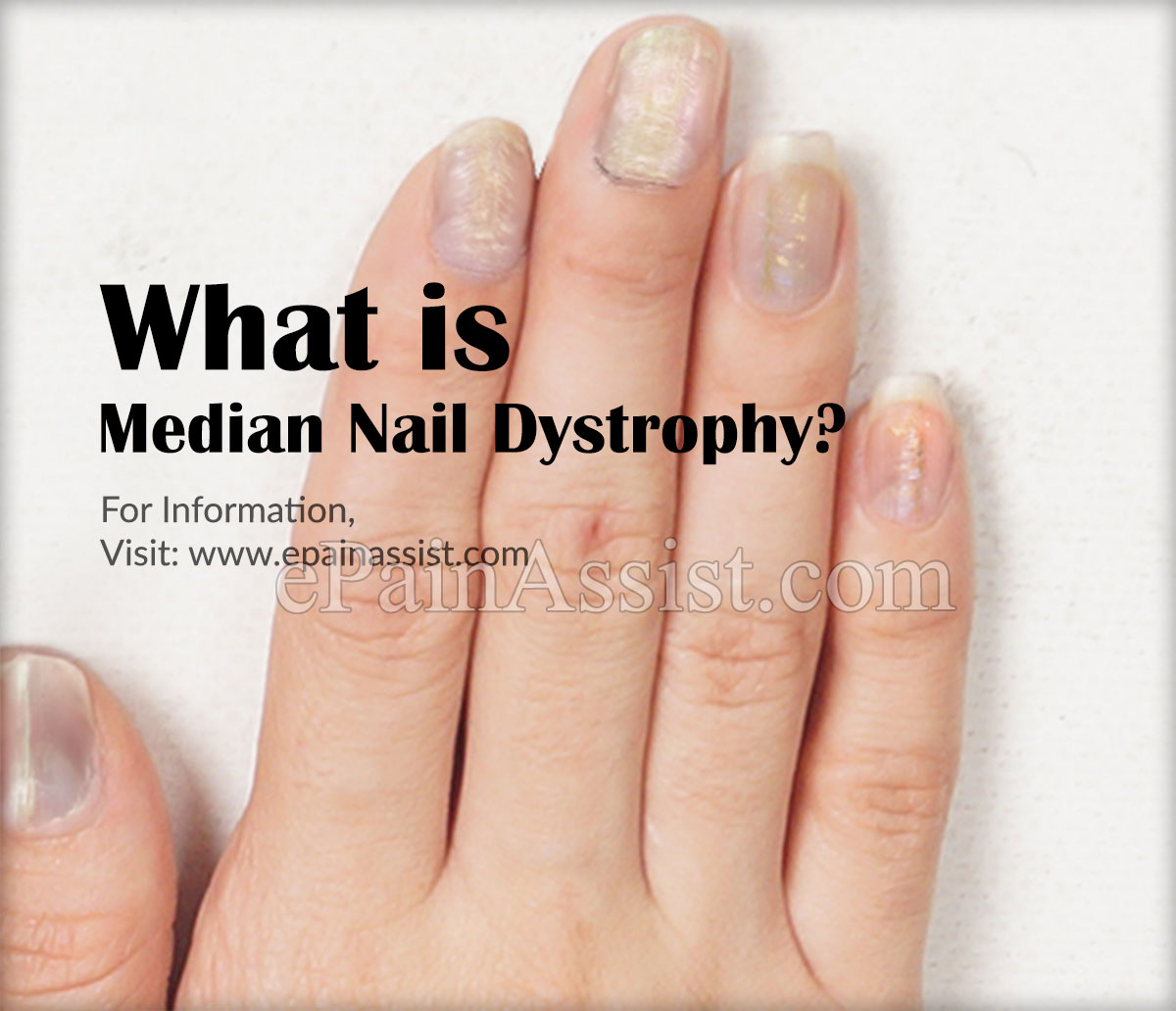 What is Median Nail Dystrophy?