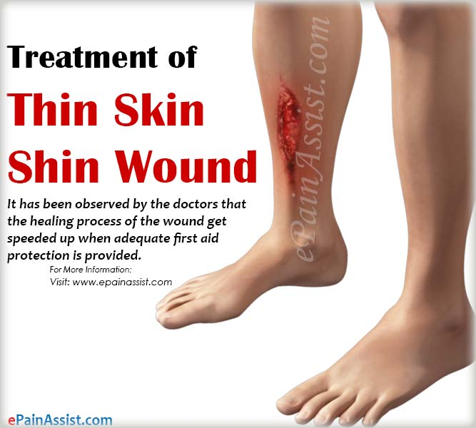 Treatment of Thin Skin Shin Wound