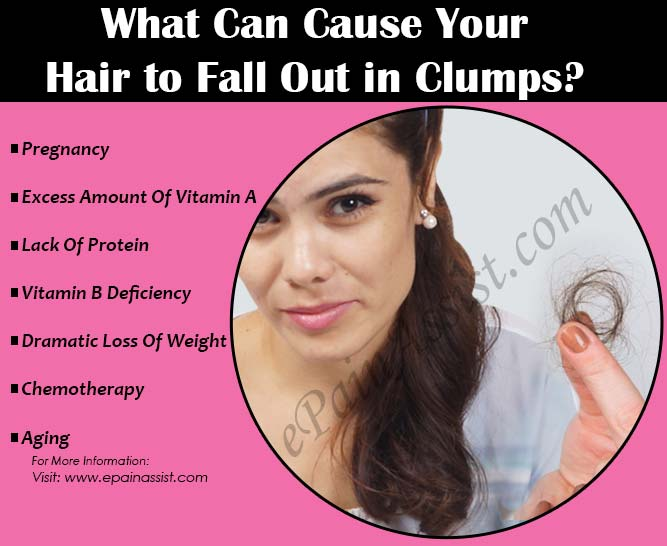 What Can Cause Your Hair to Fall Out in Clumps?