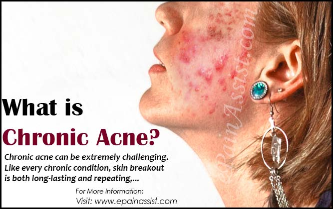 What is Chronic Acne?