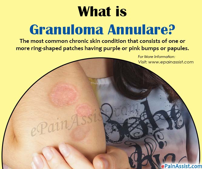 What is Granuloma Annulare?