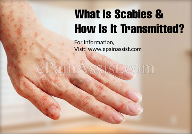 What Is Scabies & How Is It Transmitted?