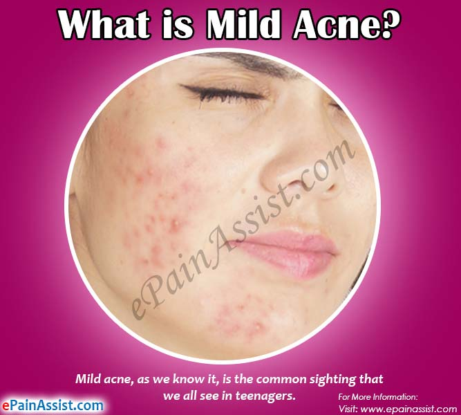 What is Mild Acne?
