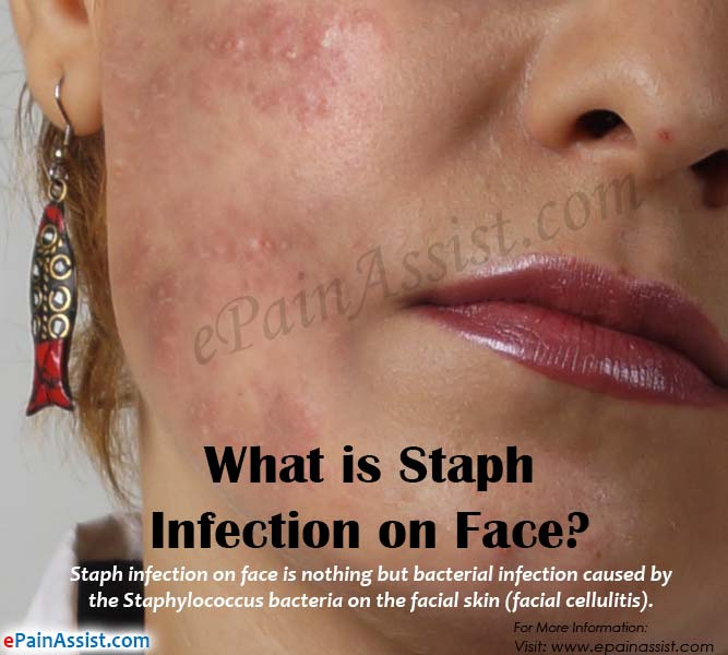What Is Staph Infection On Face
