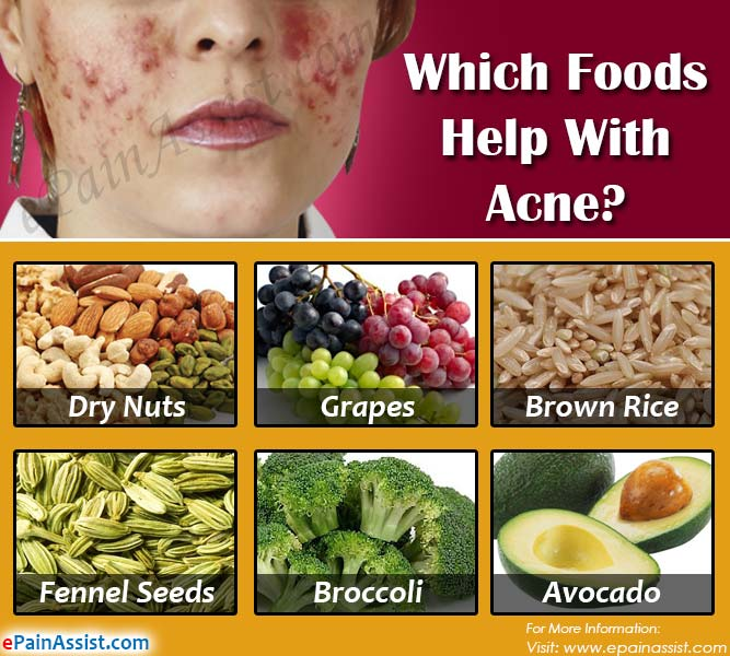 Which Foods Help With Acne?