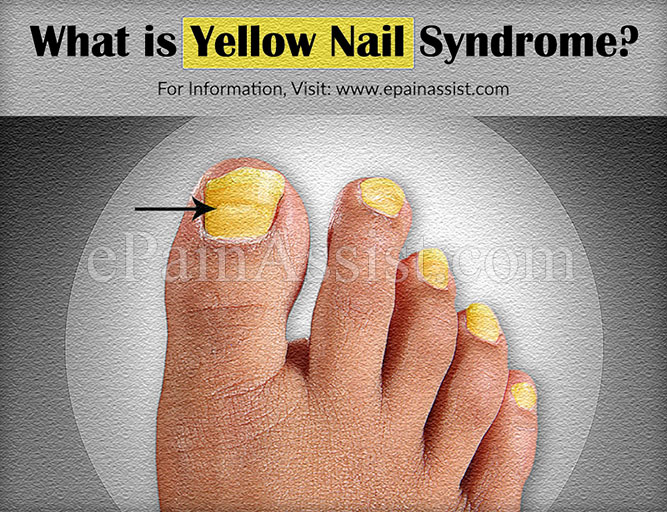 What is Yellow Nail Syndrome?