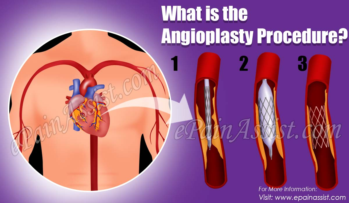 What is the Angioplasty Procedure?