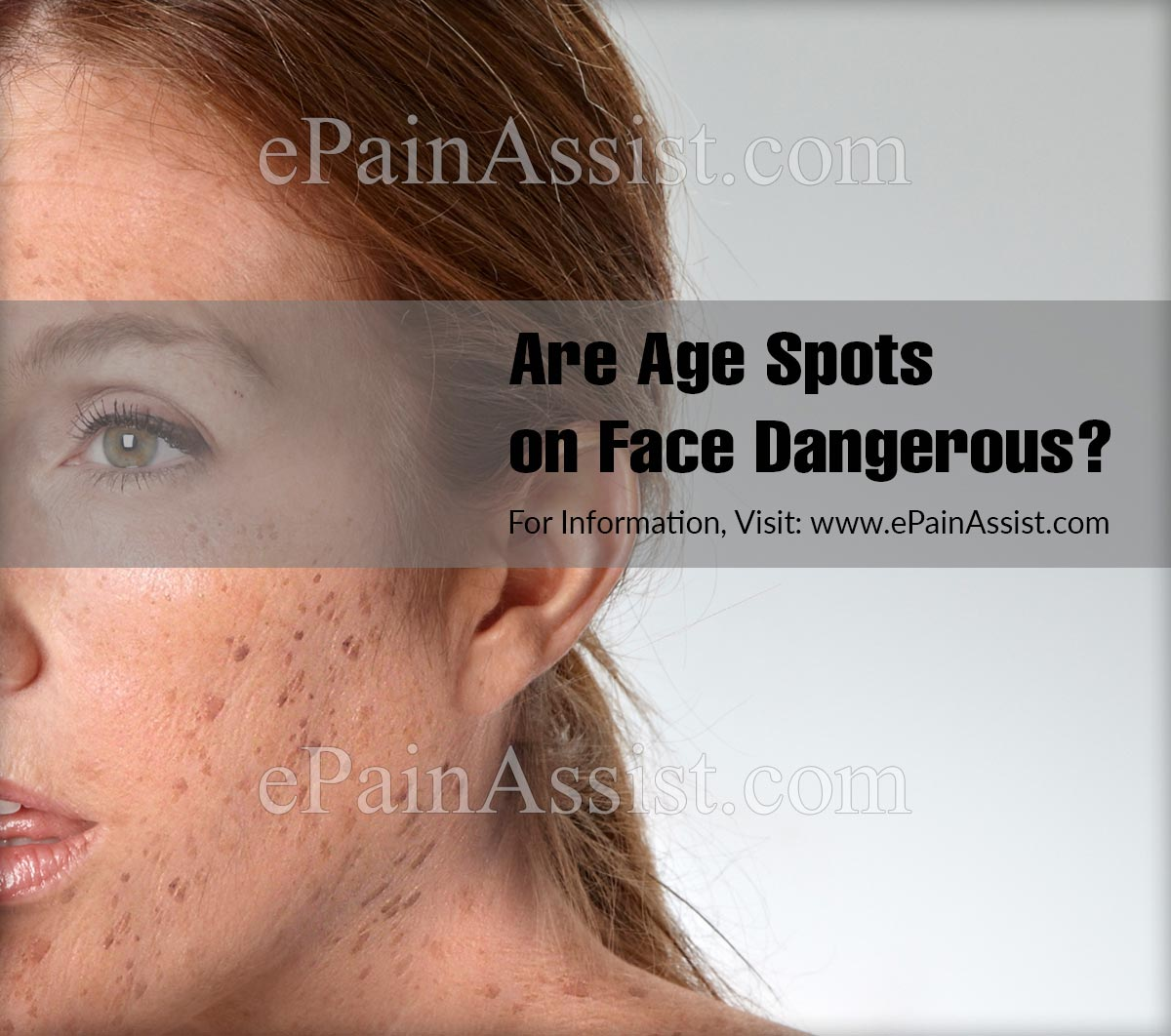Are Age Spots On Face Dangerous?