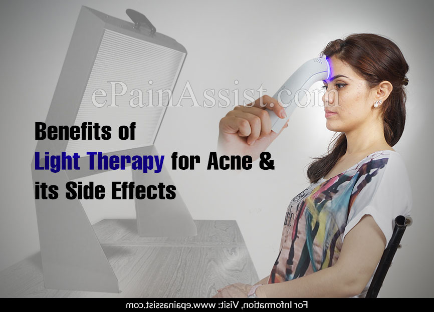 Benefits of Light Therapy for Acne & its Side Effects