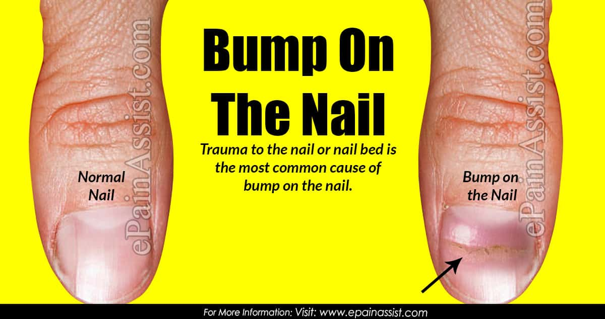 Bump On The Nail