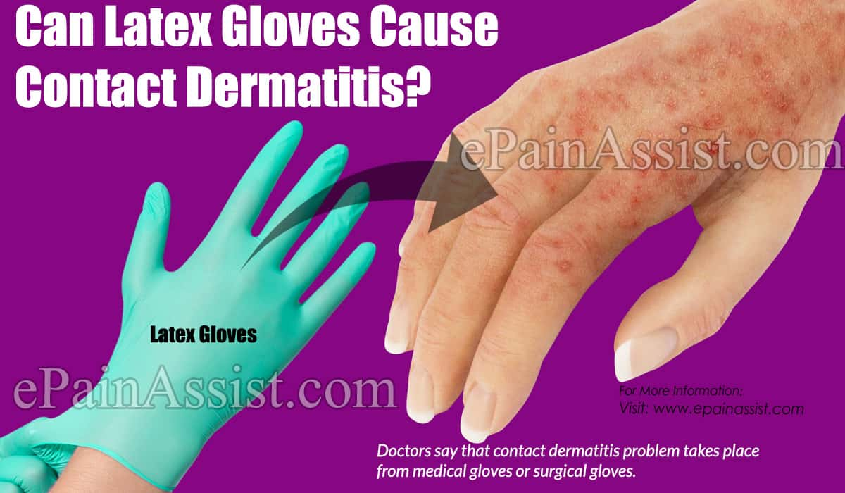 Can Latex Gloves Cause Contact Dermatitis?