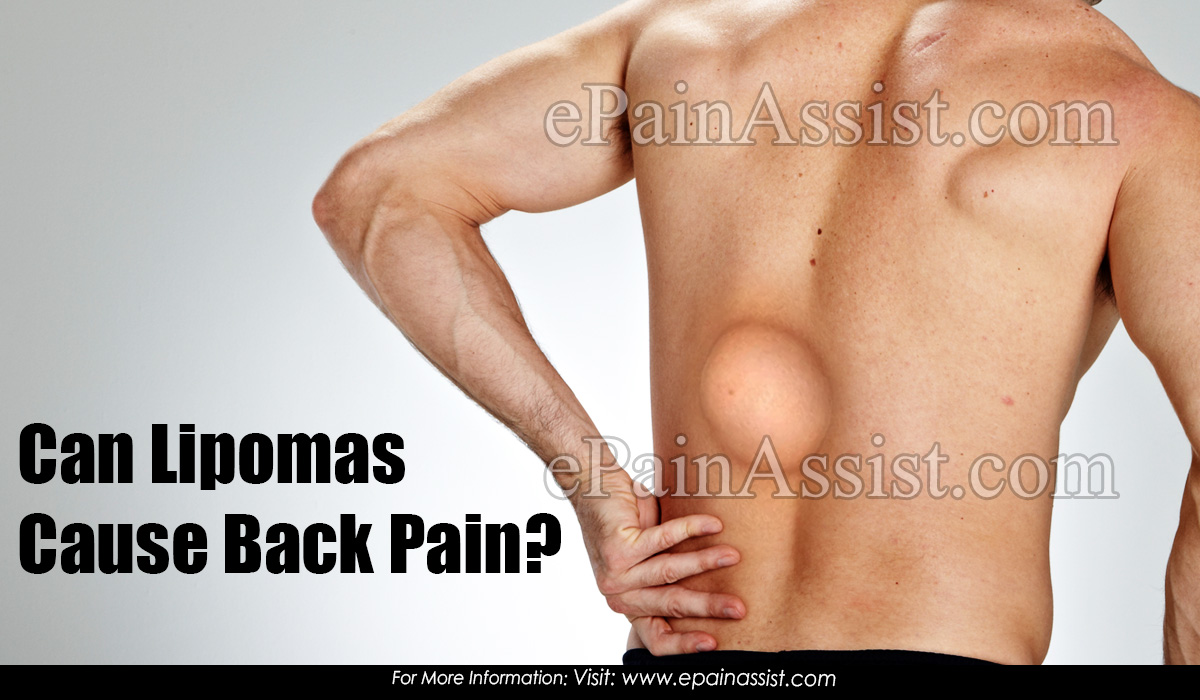 Can Lipomas Cause Back Pain?