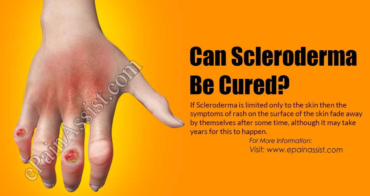 Can Scleroderma Be Cured?