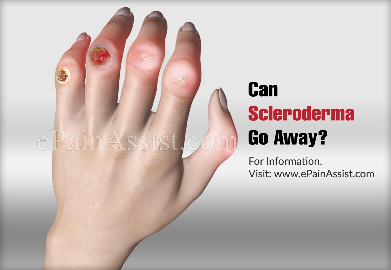 Can Scleroderma Go Away?