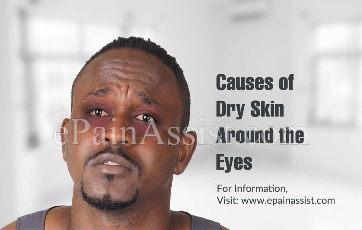 Causes of Dry Skin Around the Eyes