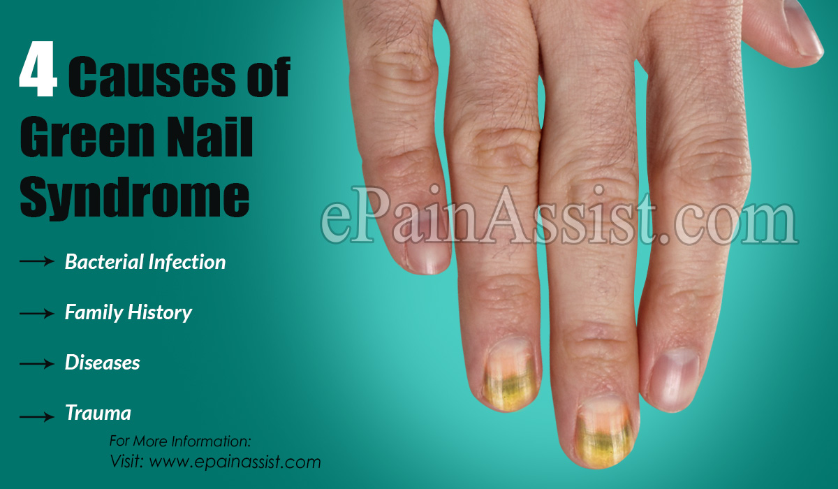4 Causes of Green Nail Syndrome