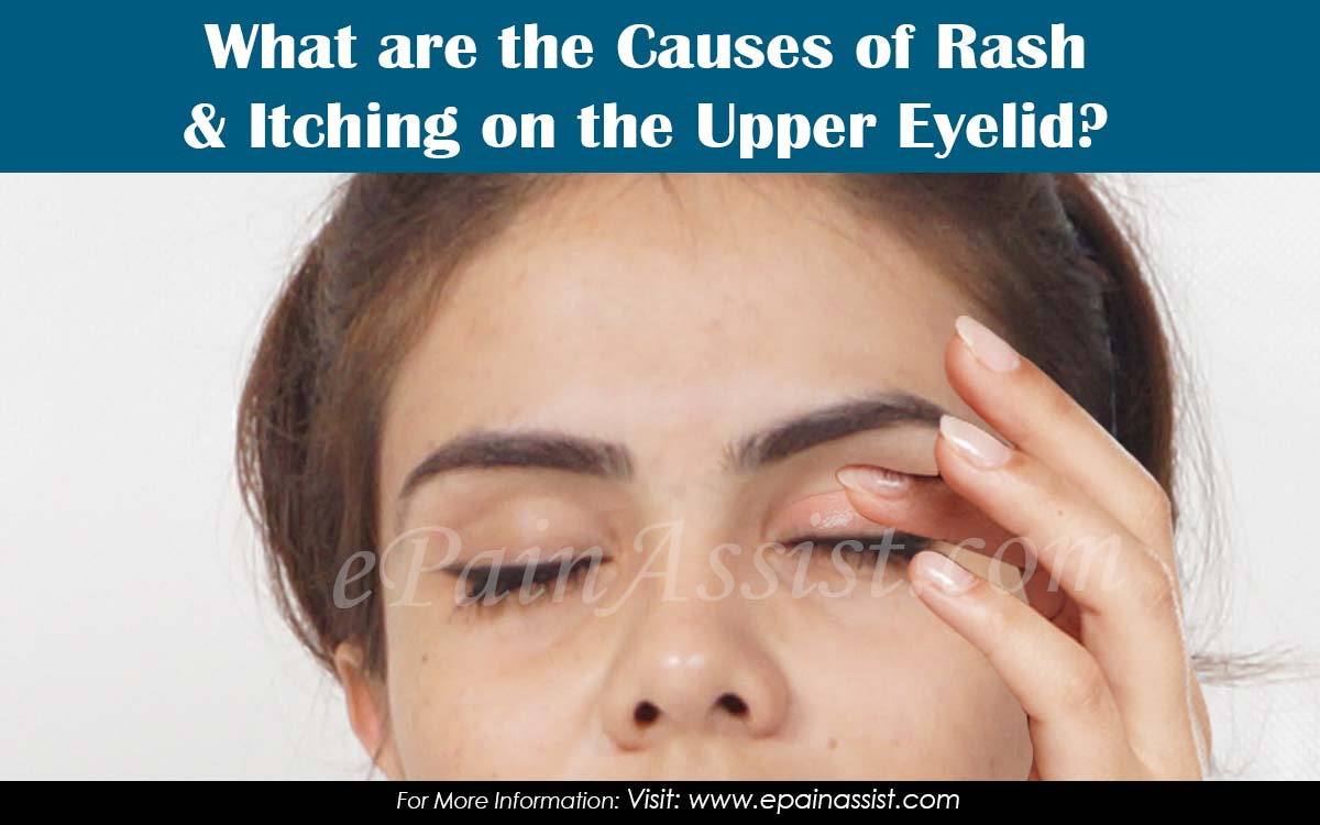 What are the Causes of Rash & Itching on the Upper Eyelid?