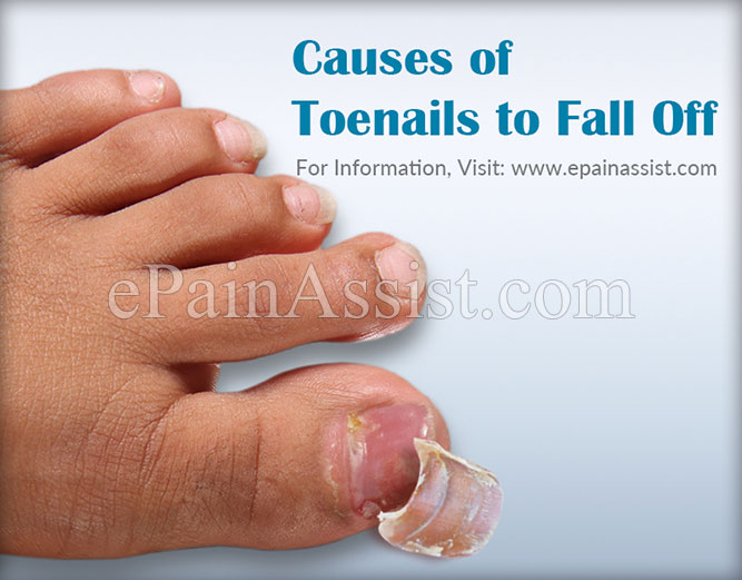Causes of Toenails to Fall Off & Its Treatment, Management