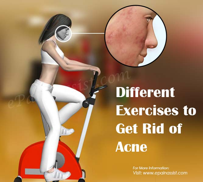 Different Exercises to Get Rid of Acne