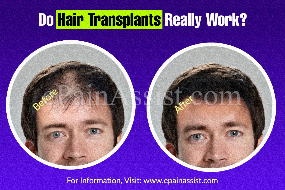 Do Hair Transplants Really Work?