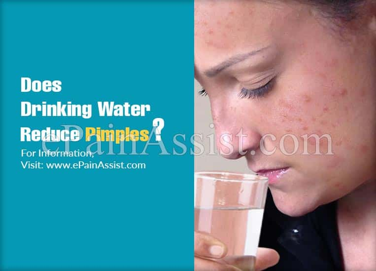 Does Drinking Water Reduce Pimples?